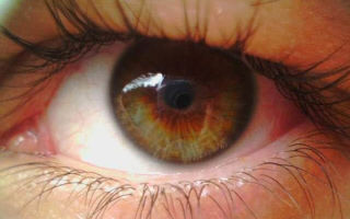 Цистицеркоз глаз человека: лечение и профилактика