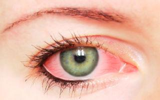 Химический ожог слизистой глаза после наращивания ресниц