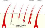 Что такое корни ресниц и почему они могут болеть