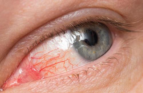 глаз при аллергии на тушь