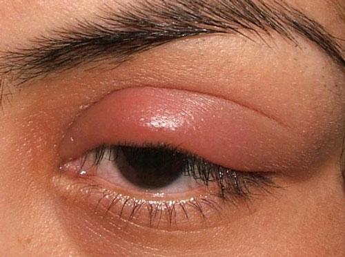 распух глаз после наращивания