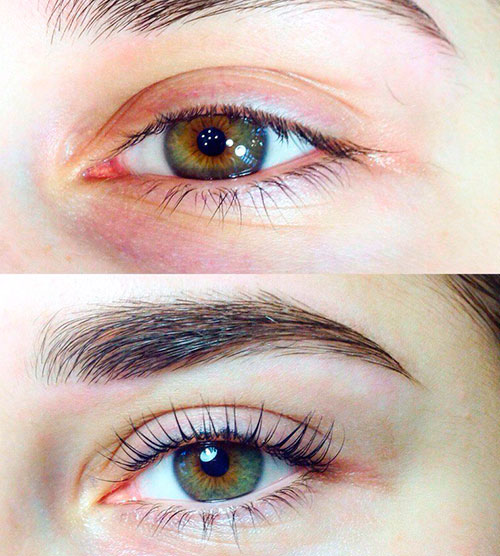 краснота глаз при наращивании
